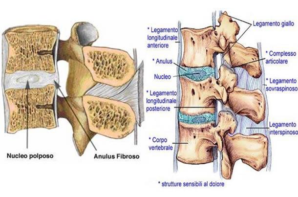 mal di schiena articolazioni Lanza Personal Trainer personal Trainer Taranto